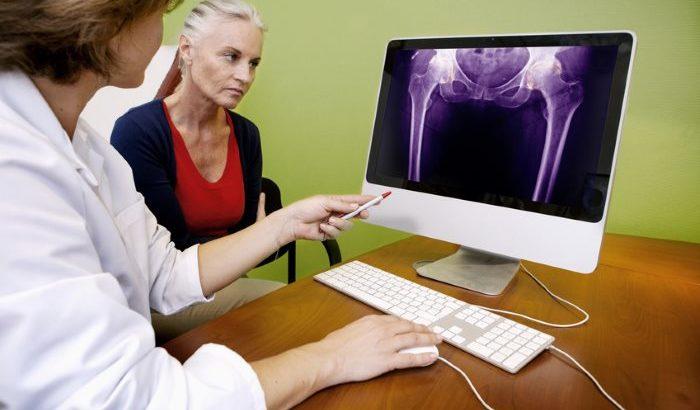 Volksleiden Knochenerkrankungen – wie steht der Kampf gegen Arthrose und Co.?<