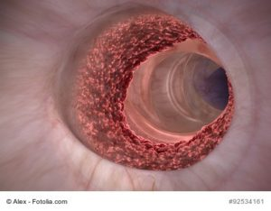 © Alex – Fotolia.com, Von Krebszellen befallener Darm!