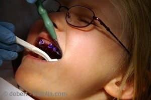 Zahnversiegelung bei Kindern – sinnvoll oder nicht?