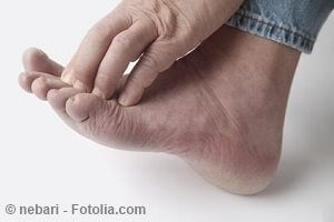 Juckende Füße – mögliche Ursachen und Gegenmaßnahmen