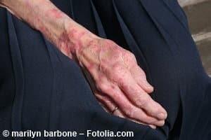 Infizierte Wunden – was tun, wenn eine Entzündung droht?