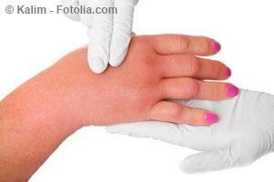 Geschwollene Hände – mögliche Ursachen und Gegenmaßnahmen