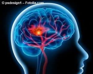 © psdesign1 – Fotolia.com