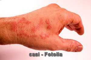 © casi - Fotolia.com
