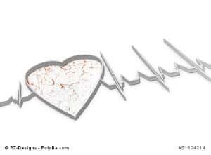 Herzinfarkt vorbeugen – Tipps zur richtigen Vorsorge