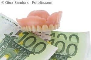 Zuzahlung zum Zahnersatz – was übernimmt die Kasse?