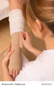 Krampfadern vorbeugen – Anzeichen erkennen