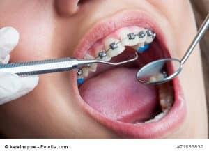 Zahnärzte – brillante Helfer oder Patientenschreck?