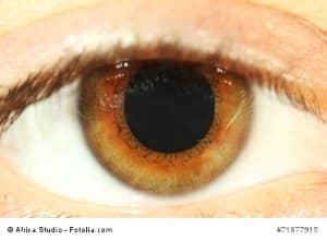 Erweiterte Pupillen – Ursachen und Gegenmaßnahmen