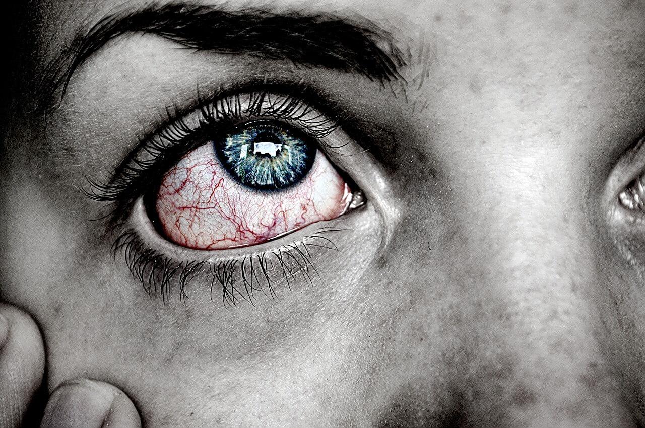 Geplatzte Ader im Auge