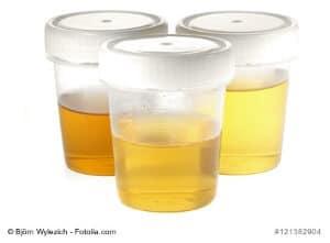 Ahornsirupkrankheit (Leuzinose) – Ursachen, Symptome, Therapie
