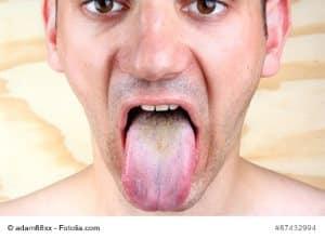 Zungenbrennen – Ursachen und Gegenmittel