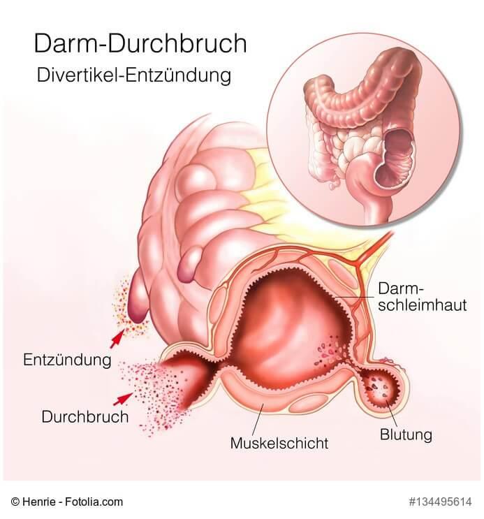 Wunderbar Anatomie Und Physiologie Des Darmes Bilder - Menschliche ...