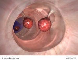 Bild von Polypen im Darm