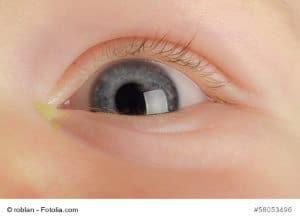 Stechen im Auge – Ursache und Gegenmaßnahmen