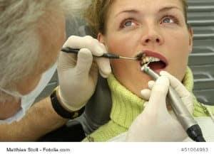 Zahnstein entfernen – Behandlung und Hausmittel – Ratgeber