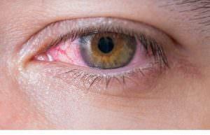 Rote Augen – wie kommt es zu einer Rötung?
