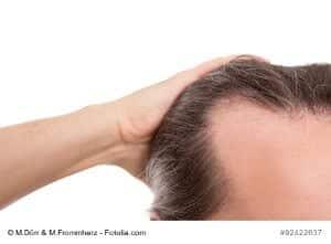 Haarwurzelentzündung (Follikulitis) – Ursachen, Symptome und Therapie