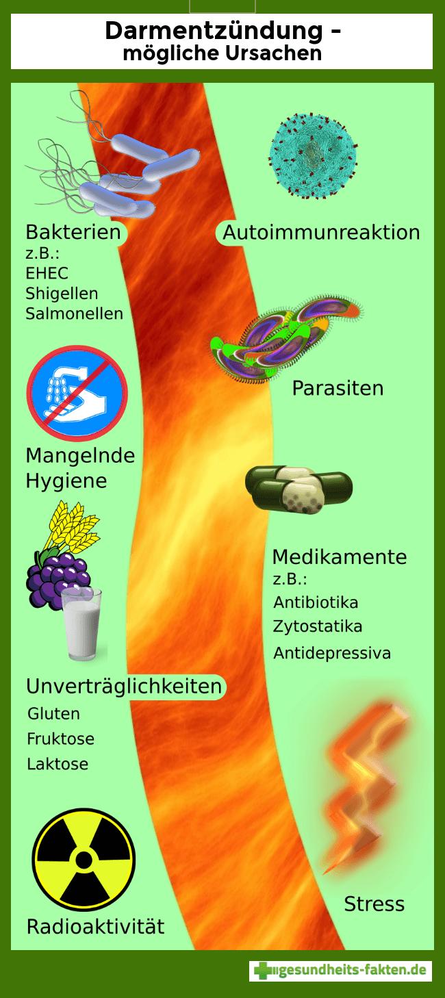 Infografik zu Ursachen einer Dickdarmentzündung