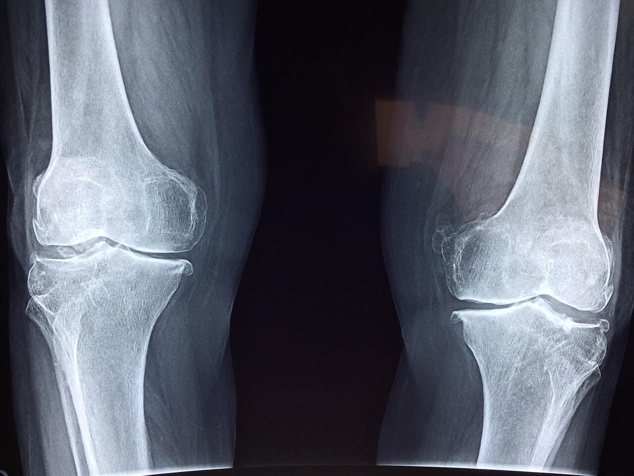 Osteoporose vorbeugen