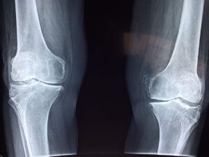 Knochenhautentzündung