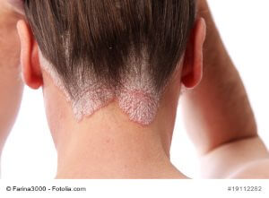 Kopfhautentzündung – Ursachen, Symptome, Therapie