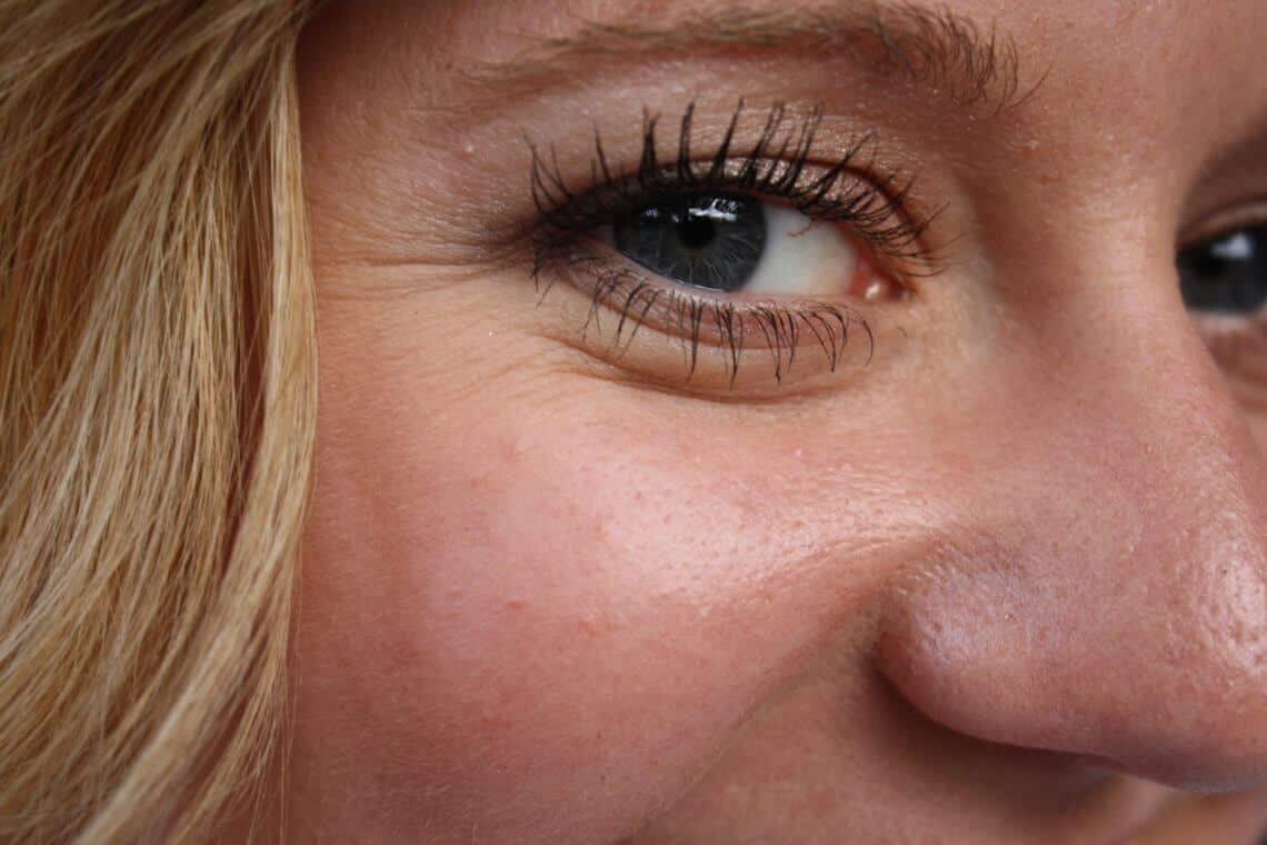 Krähenfüße-Behandlung: Effektives Entfernen von Krähenfüßen