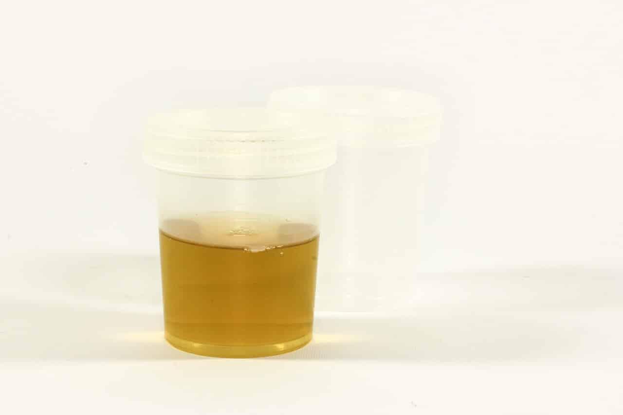 Stinkender Urin