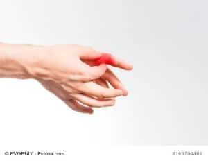 Blaue Finger – Was bedeutet die Blaufärbung der Fingerkuppen?