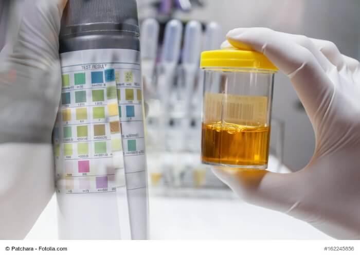 Stinkender Urin: Ursachen, Behandlung, Krankheiten