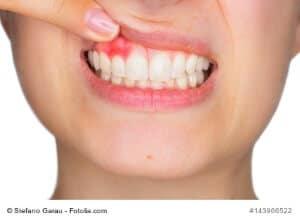 Zahnfistel – Ursachen, Symptome und Behandlung