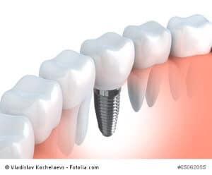 Zahnimplantate – zu Recht die Luxuslösung beim Zahnersatz?